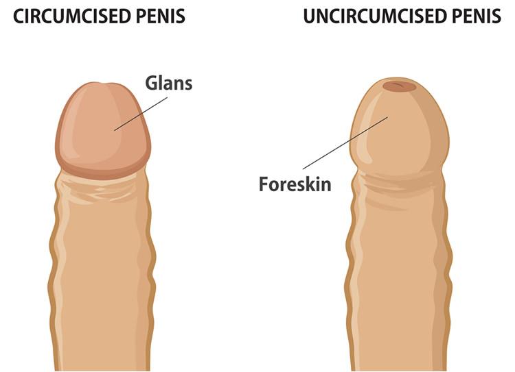 Circumcision Diagram